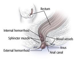 hemorroids