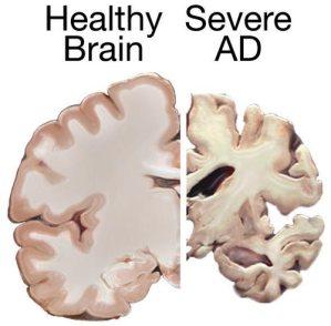Alzheimers_brain
