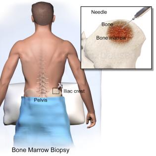BoneMarrowBiopsy