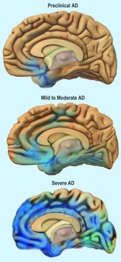 brain shrink