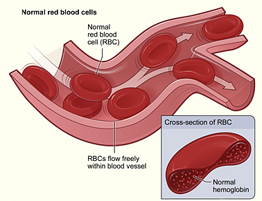 Modified_sickle_cell_01